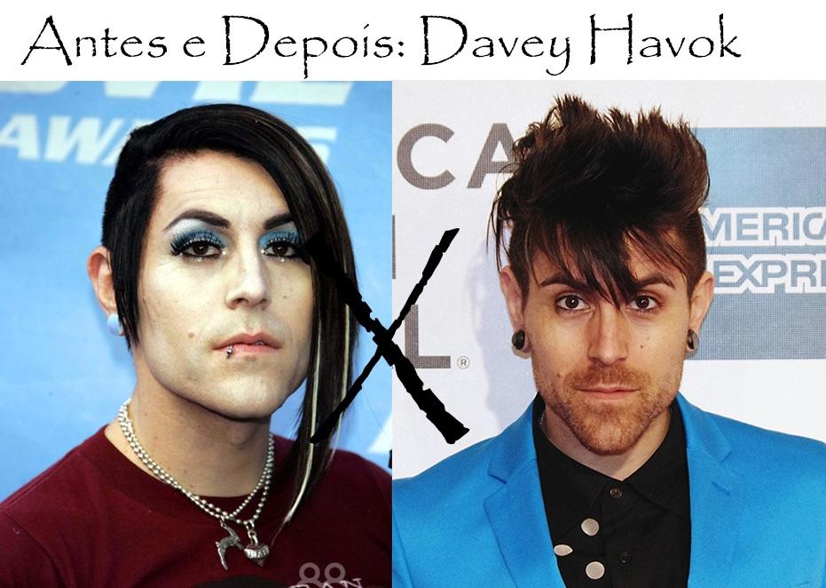 Antes E Depois Davey Havok Puro Glamour